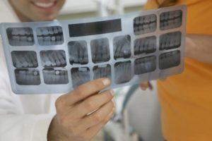 Emergency dentist conway ar