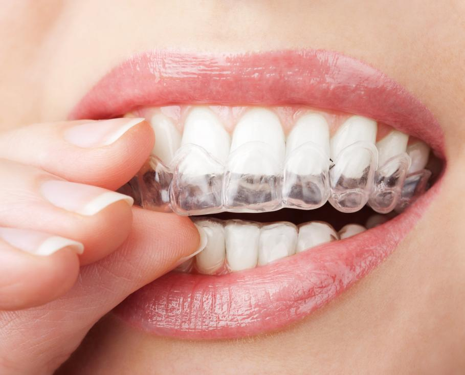 Clear Correct Braces